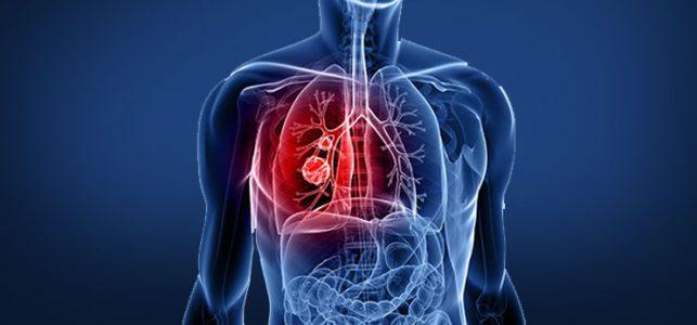 pulmolog